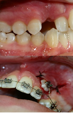 Before and after example of an unerupted tooth exposed for orthodontic bracketing